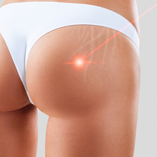 Does laser therapy work